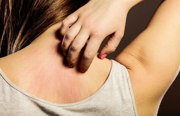 Itching Treatment Methods