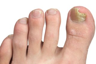 Practical Recommendations for Fungal Infection Treatment