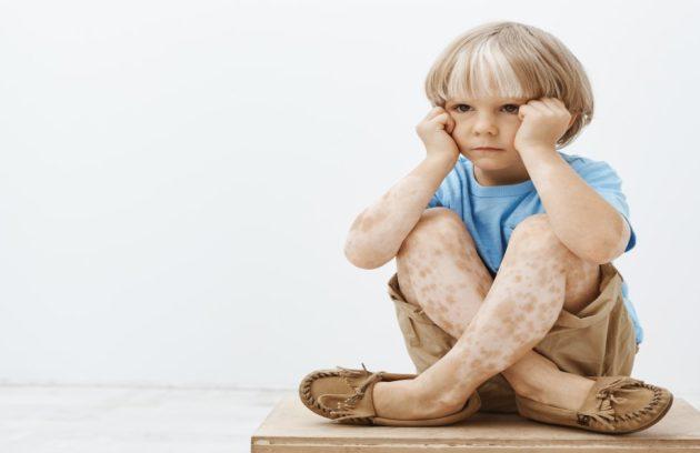Vitiligo -Skin Disease Hospital