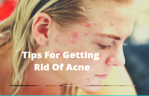 Treatment For Pimples