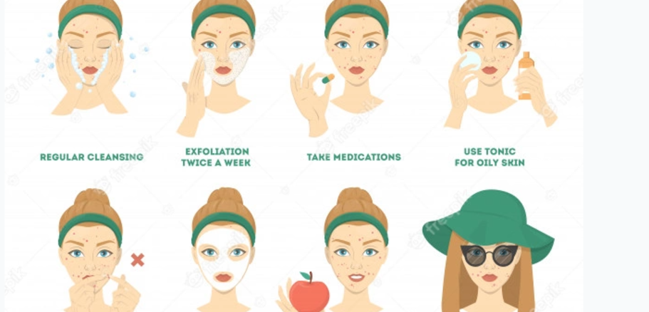 Treatment For Acne   Skin disease Hospital
