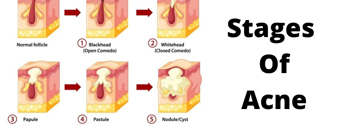 What Are The Causes And Treatment For Cystic Acne